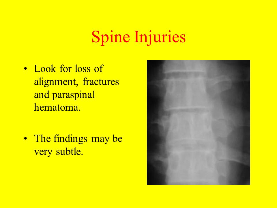 Spine Injuries Look for loss of alignment, fractures and paraspinal hematoma. The findings may be very subtle.