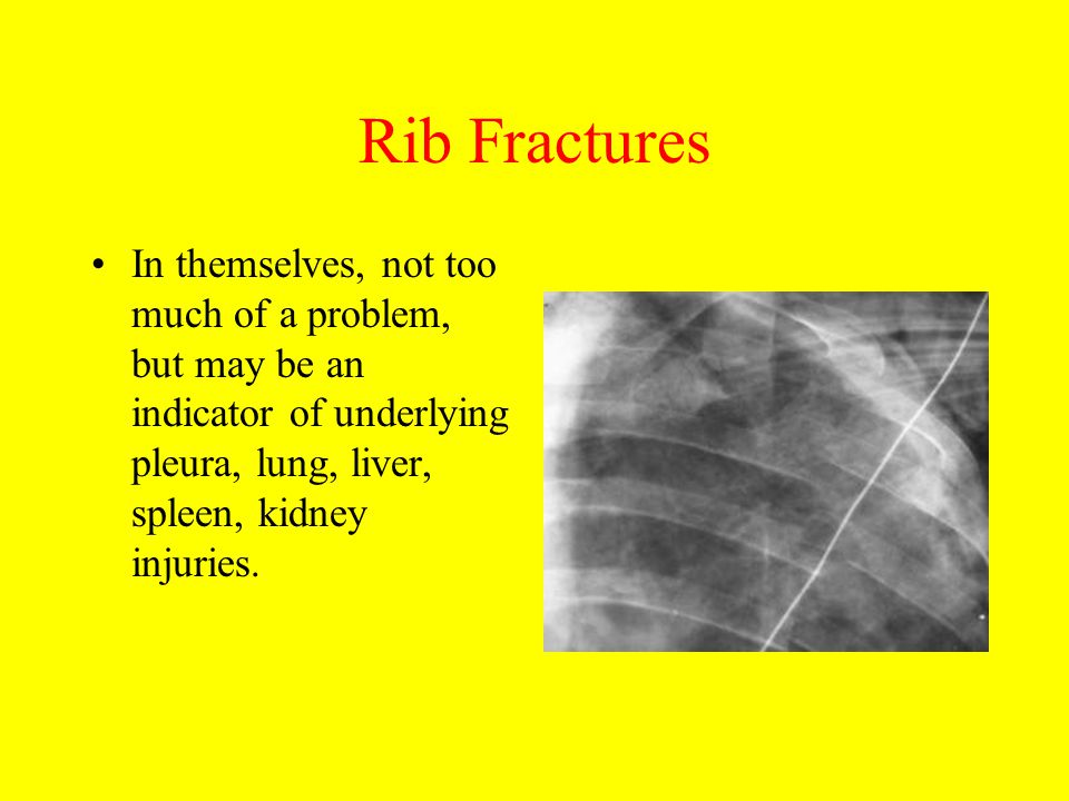 Rib Fractures In themselves, not too much of a problem, but may be an indicator of underlying pleura, lung, liver, spleen, kidney injuries.