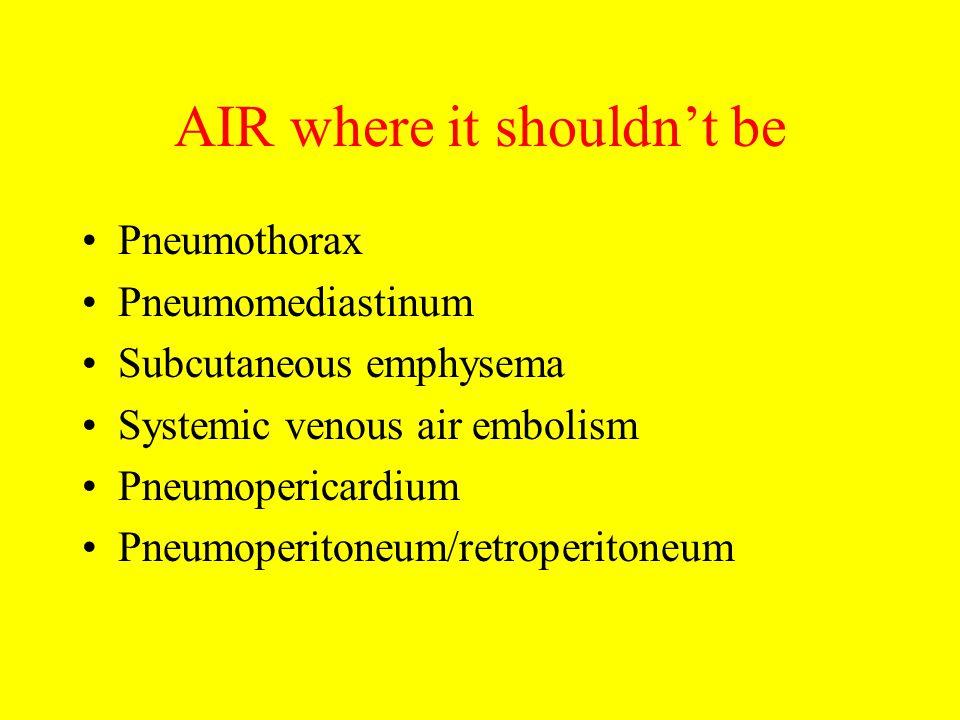 AIR where it shouldn't be Pneumothorax Pneumomediastinum Subcutaneous emphysema Systemic venous air embolism Pneumopericardium Pneumoperitoneum/retroperitoneum