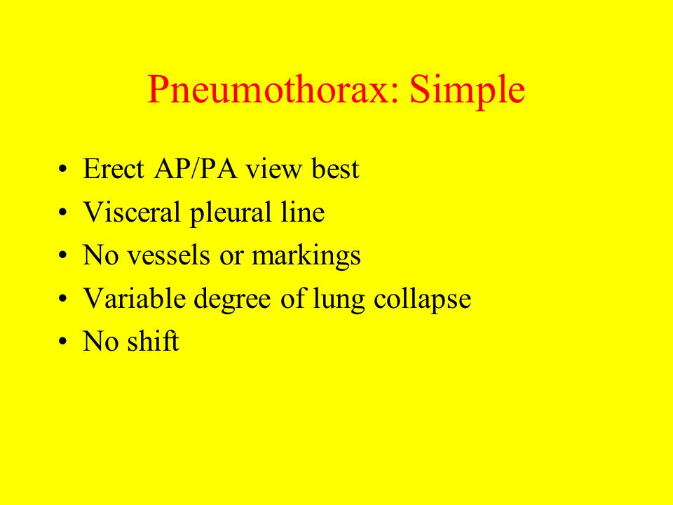 Pneumothorax: Simple Erect AP/PA view best Visceral pleural line No vessels or markings Variable degree of lung collapse No shift