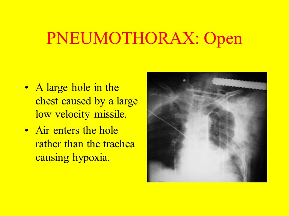 PNEUMOTHORAX: Open A large hole in the chest caused by a large low velocity missile. Air enters the hole rather than the trachea causing hypoxia.