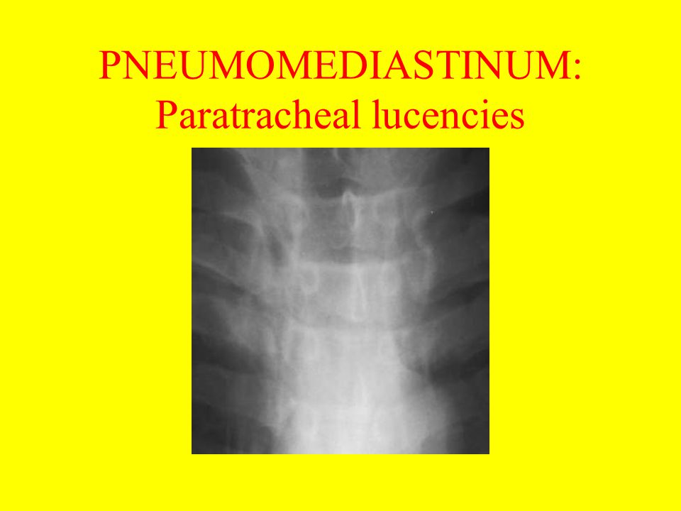 PNEUMOMEDIASTINUM: Paratracheal lucencies