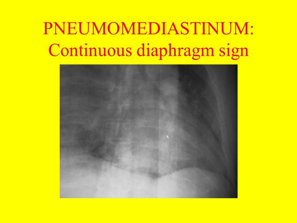 PNEUMOMEDIASTINUM: Continuous diaphragm sign