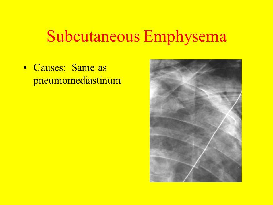 Subcutaneous Emphysema Causes: Same as pneumomediastinum