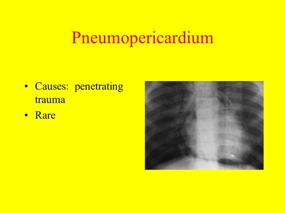 Pneumopericardium Causes: penetrating trauma Rare