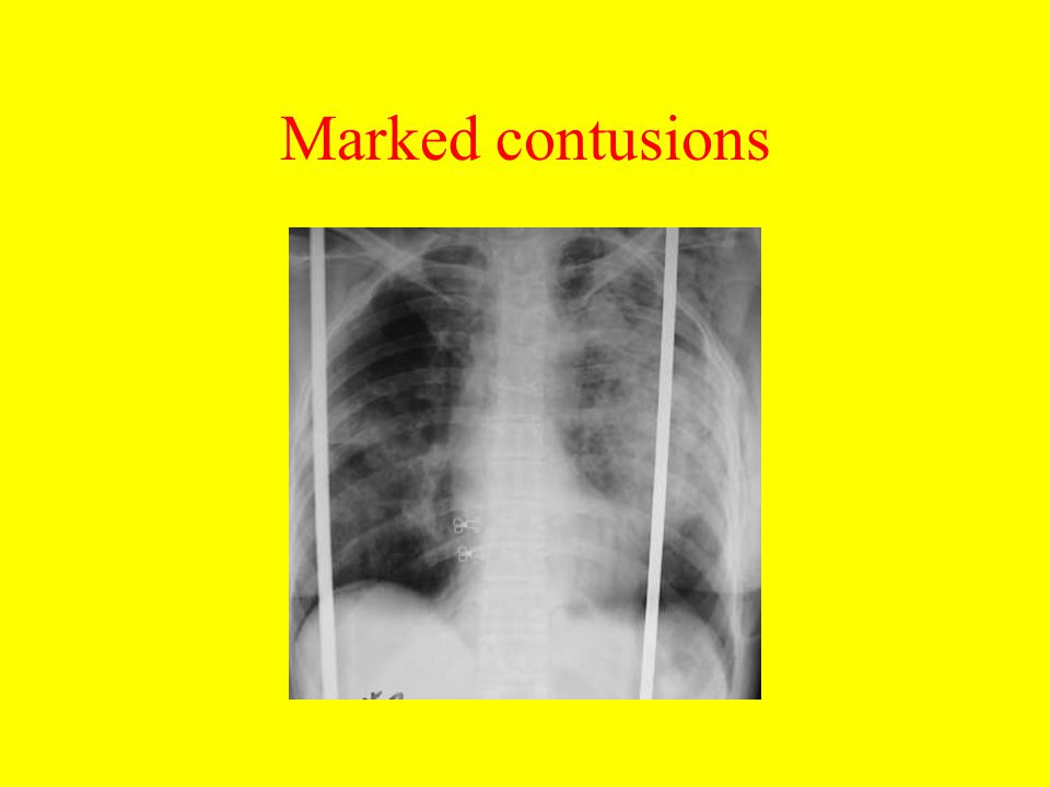 Marked contusions