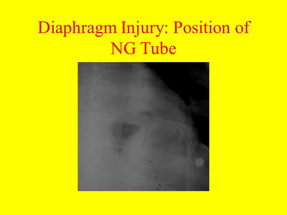 Diaphragm Injury: Position of NG Tube