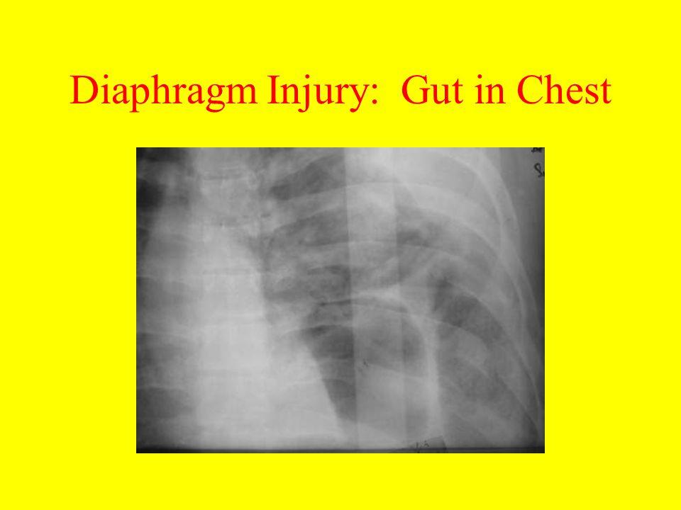 Diaphragm Injury: Gut in Chest