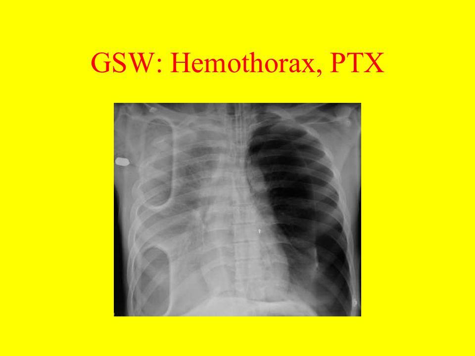 GSW: Hemothorax, PTX