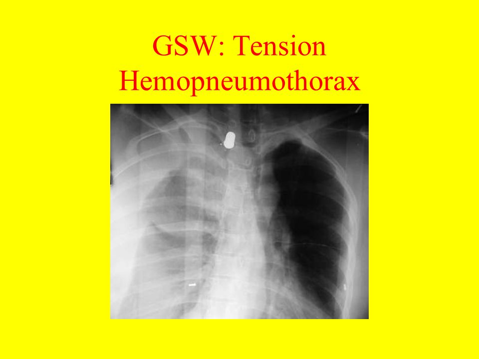 GSW: Tension Hemopneumothorax