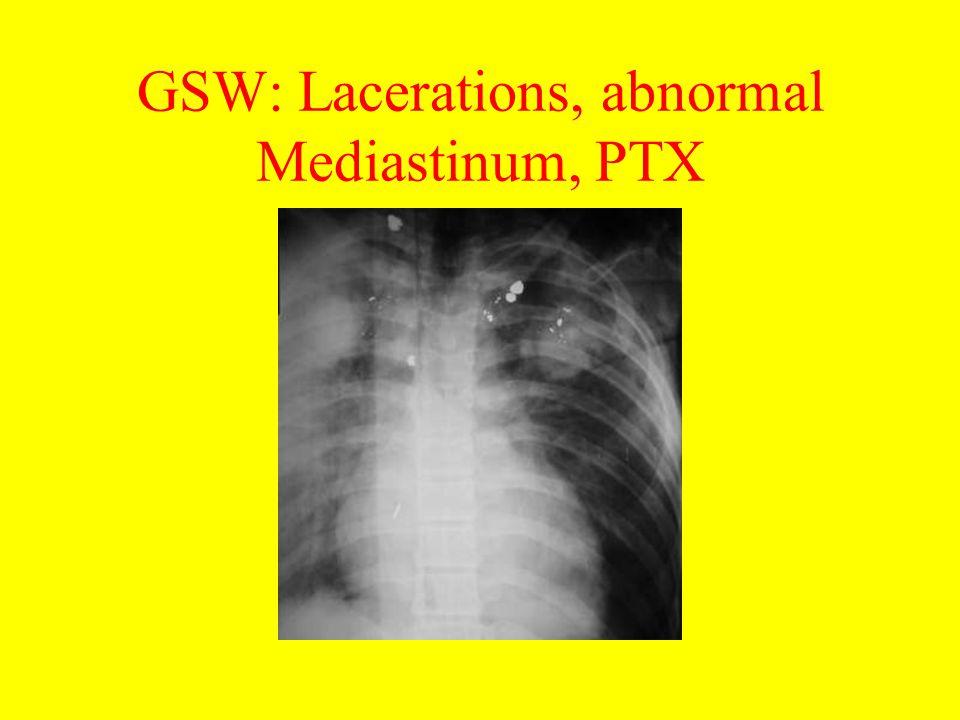 GSW: Lacerations, abnormal Mediastinum, PTX