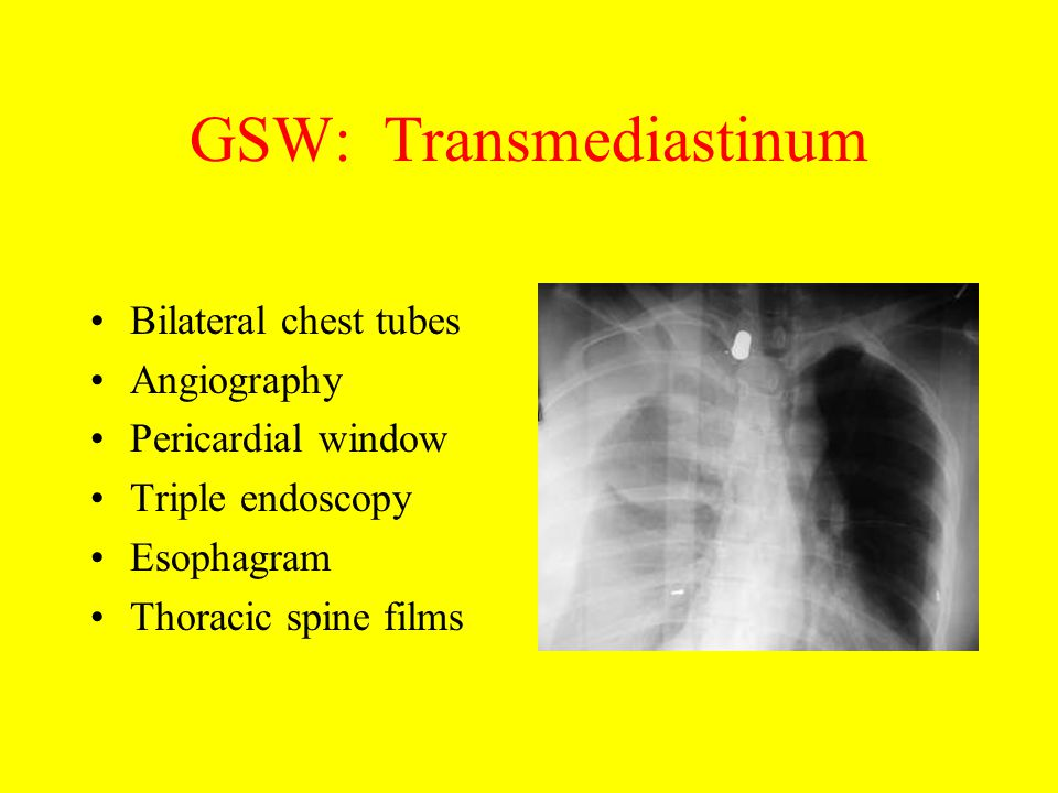 GSW: Transmediastinum Bilateral chest tubes Angiography Pericardial window Triple endoscopy Esophagram Thoracic spine films