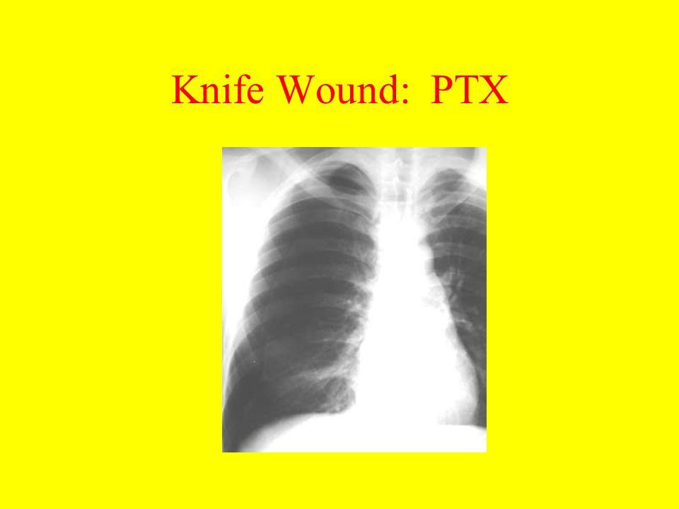 Knife Wound: PTX