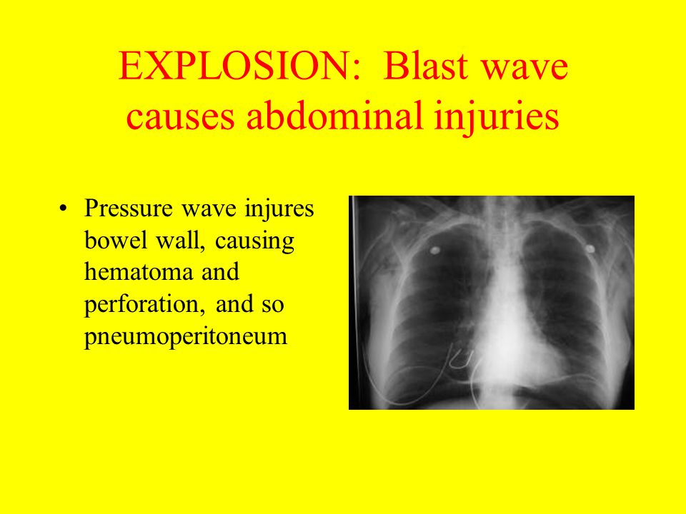 EXPLOSION: Blast wave causes abdominal injuries Pressure wave injures bowel wall, causing hematoma and perforation, and so pneumoperitoneum