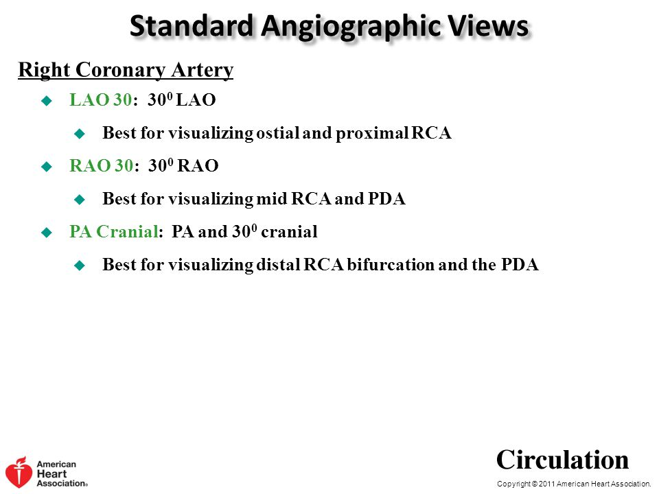 Copyright © 2011 American Heart Association. Standard Angiographic Views  LAO 30: 30 0 LAO  Best for visualizing ostial and proximal RCA  RAO 30: 3