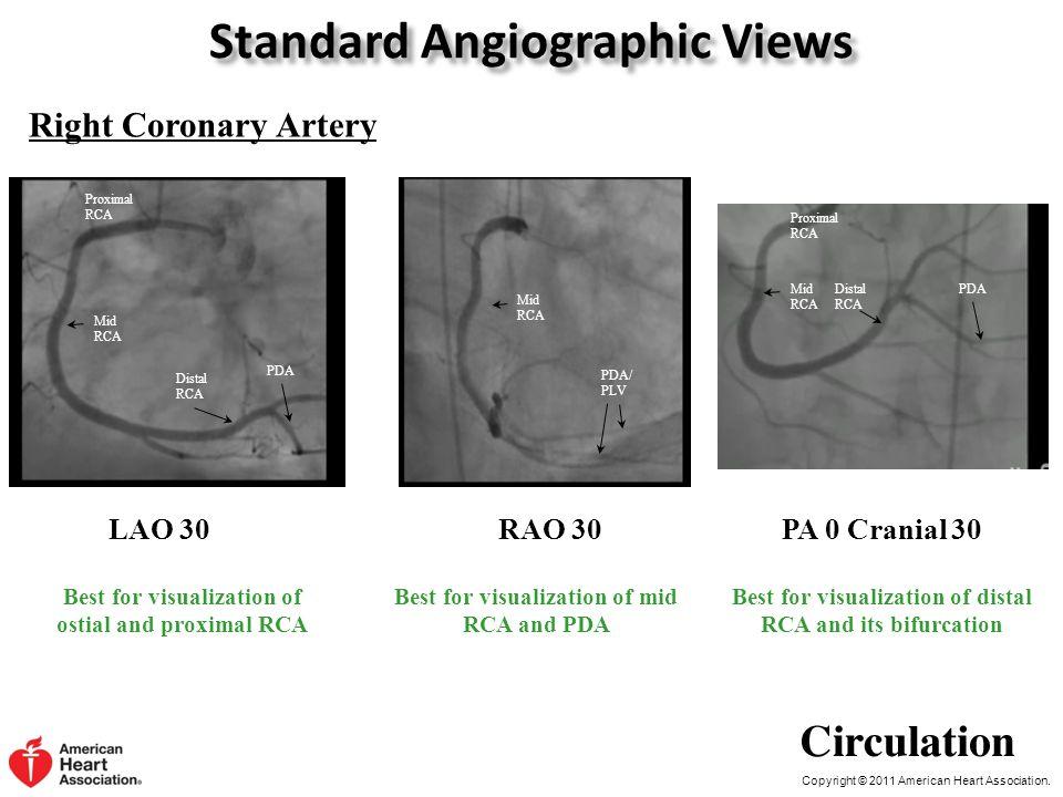Copyright © 2011 American Heart Association. Standard Angiographic Views Right Coronary Artery LAO 30 Proximal RCA PDA Distal RCA Mid RCA RAO 30 Mid R