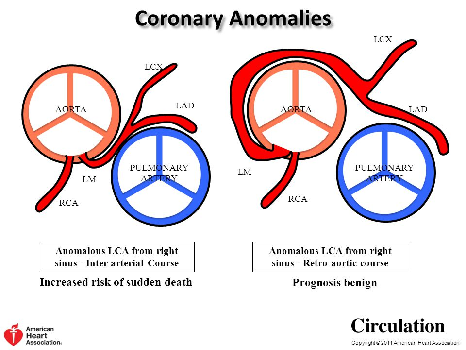 Copyright © 2011 American Heart Association. Coronary Anomalies Increased risk of sudden death Anomalous LCA from right sinus - Inter-arterial Course