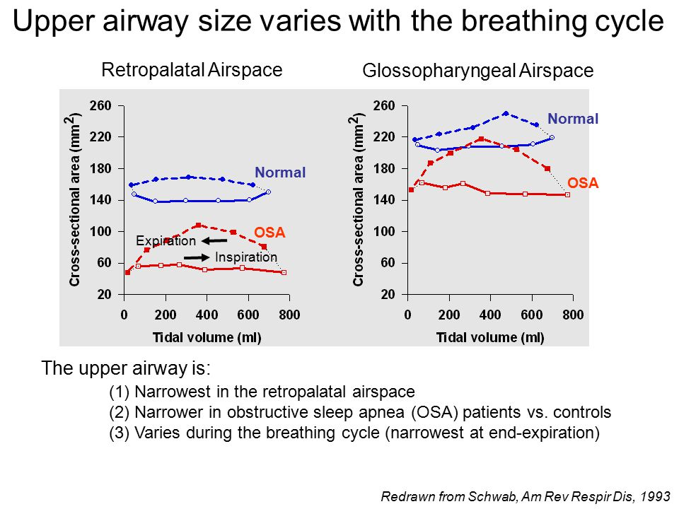 Retropalatal Airspace Glossopharyngeal Airspace Normal OSA Inspiration Expiration The upper airway is: (1) Narrowest in the retropalatal airspace (2) Narrower in obstructive sleep apnea (OSA) patients vs.