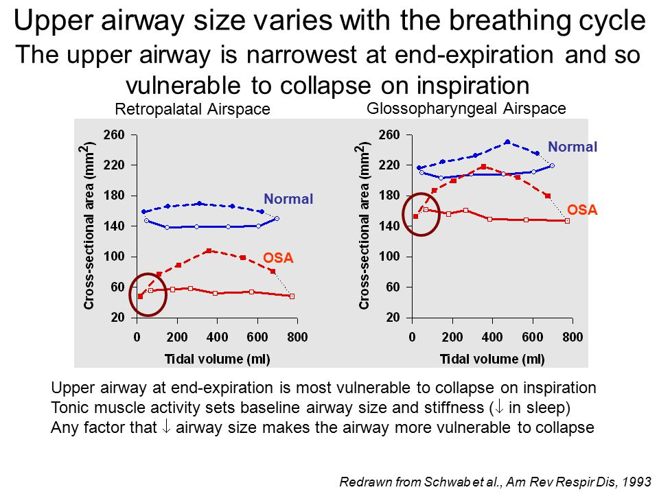 The upper airway is narrowest at end-expiration and so vulnerable to collapse on inspiration Upper airway at end-expiration is most vulnerable to collapse on inspiration Tonic muscle activity sets baseline airway size and stiffness (  in sleep) Any factor that  airway size makes the airway more vulnerable to collapse Retropalatal Airspace Glossopharyngeal Airspace Normal OSA Upper airway size varies with the breathing cycle Redrawn from Schwab et al., Am Rev Respir Dis, 1993