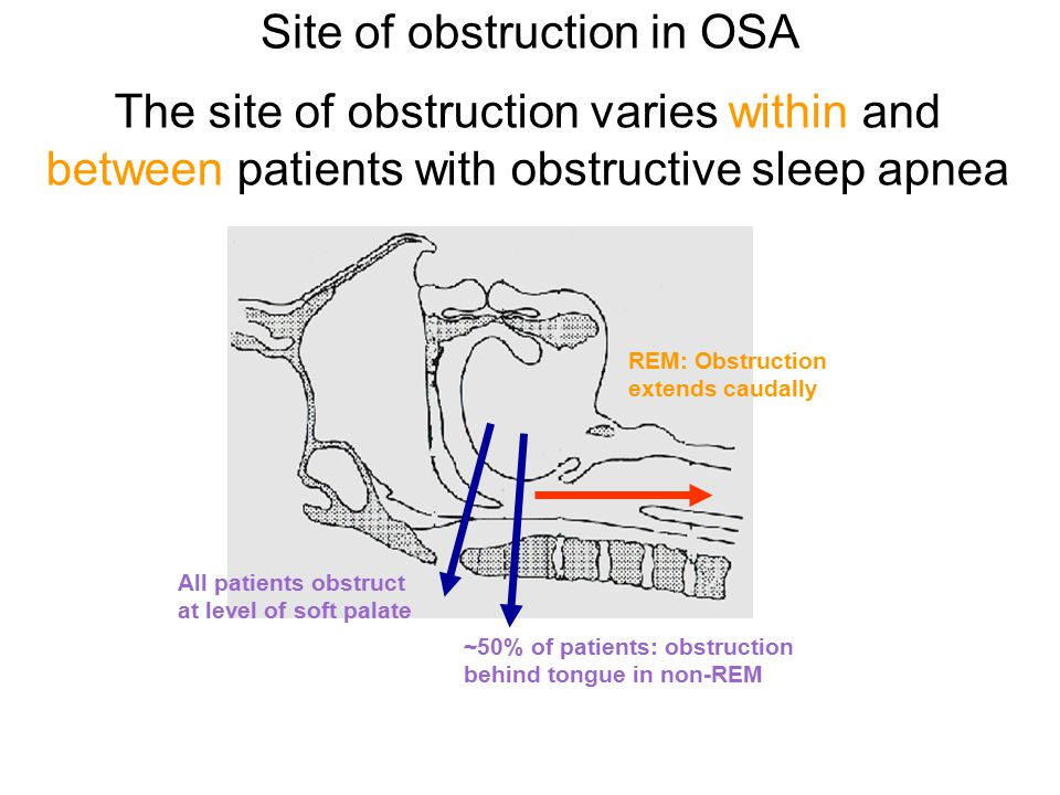 The site of obstruction varies within and between patients with obstructive sleep apnea All patients obstruct at level of soft palate ~50% of patients: obstruction behind tongue in non-REM REM: Obstruction extends caudally Site of obstruction in OSA