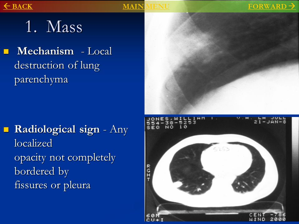 1. Mass Mechanism - Local destruction of lung parenchyma Mechanism - Local destruction of lung parenchyma Radiological sign - Any localized opacity no