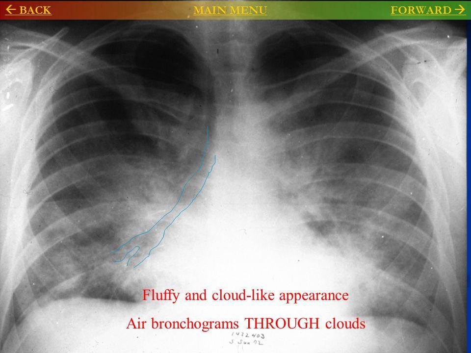 Air bronchogram Normal lung Consolidated lung, with air in bronchioles  BACKMAIN MENU BACKMAIN MENU FORWARD FORWARD 