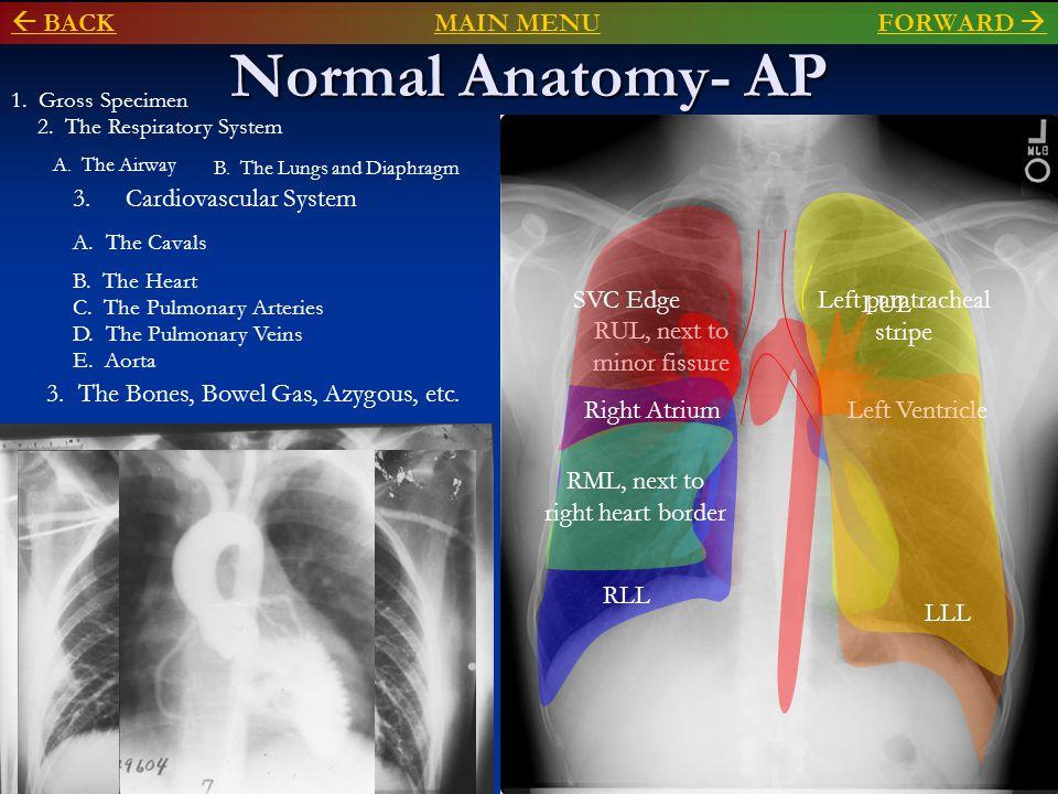 Normal Anatomy- Lateral  BACKMAIN MENU BACKMAIN MENU FORWARD FORWARD  2.