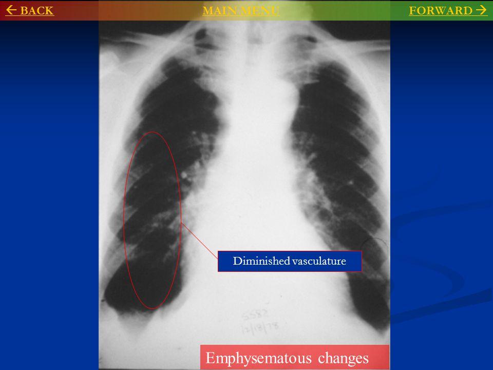 Enlarged pulmonary trunk ( middle mogul ) Prominent left pulmonary artery  BACKMAIN MENU BACKMAIN MENU FORWARD FORWARD 