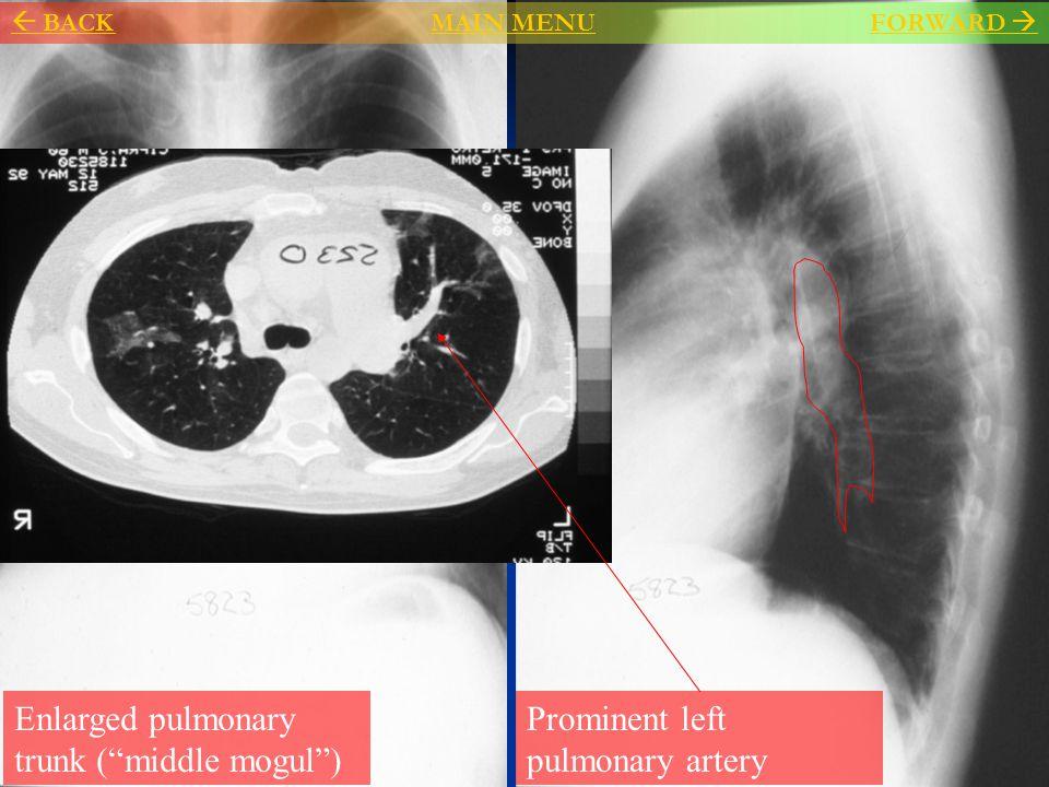 """Enlarged pulmonary trunk (""""middle mogul"""") Prominent left pulmonary artery  BACKMAIN MENU BACKMAIN MENU FORWARD FORWARD """