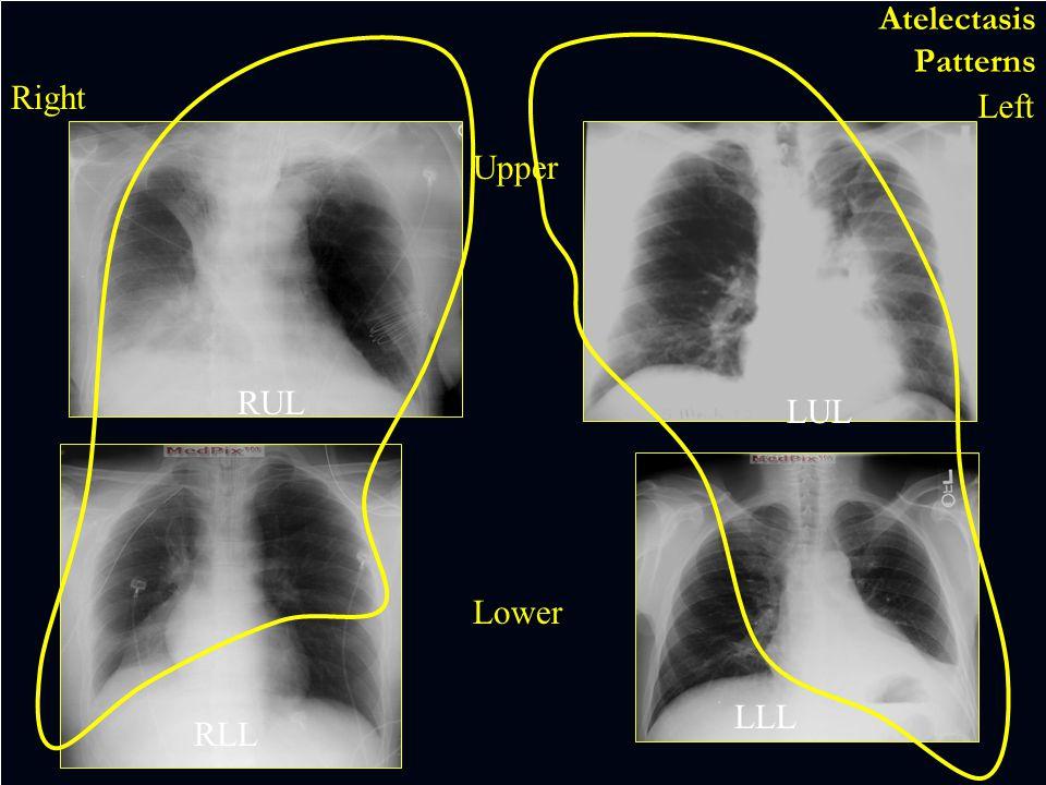 Left lower lung collapse Vessel Asymmetry  BACKMAIN MENU BACKMAIN MENU EXIT  EXIT 