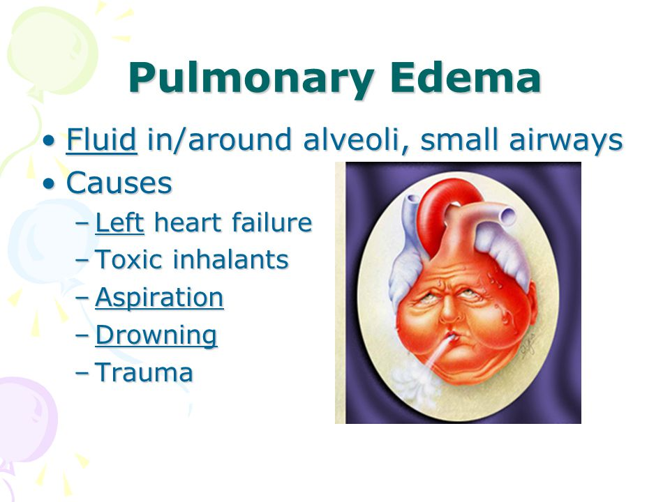 Pulmonary Edema Fluid in/around alveoli, small airwaysFluid in/around alveoli, small airways CausesCauses –Left heart failure –Toxic inhalants –Aspiration –Drowning –Trauma