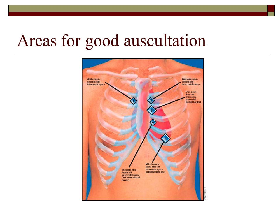Areas for good auscultation