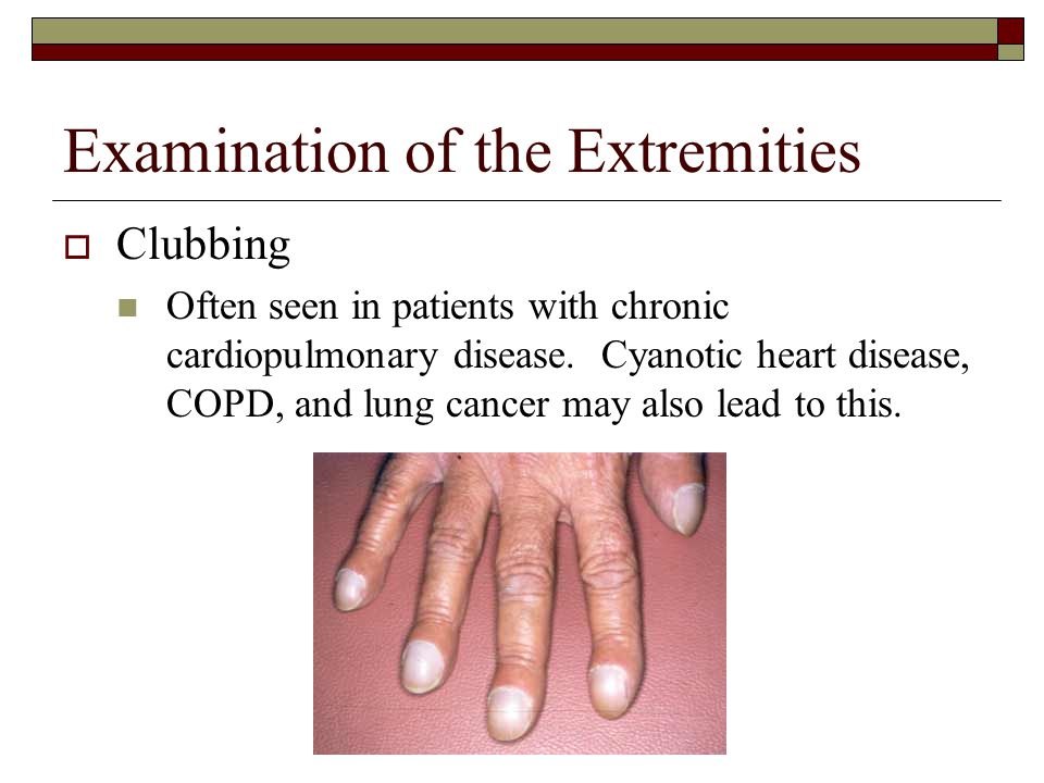 Examination of the Extremities  Clubbing Often seen in patients with chronic cardiopulmonary disease. Cyanotic heart disease, COPD, and lung cancer m