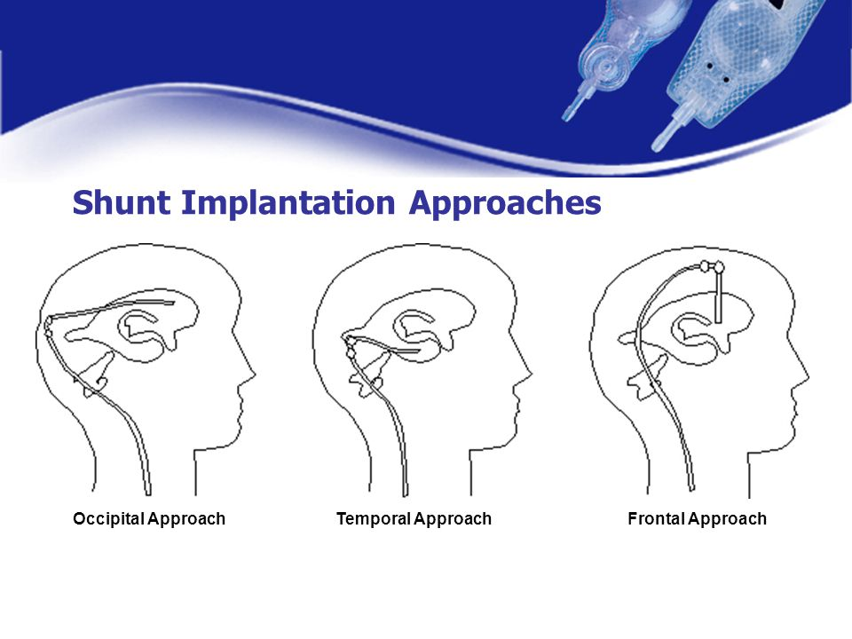 Shunt Implantation Approaches Occipital ApproachTemporal ApproachFrontal Approach