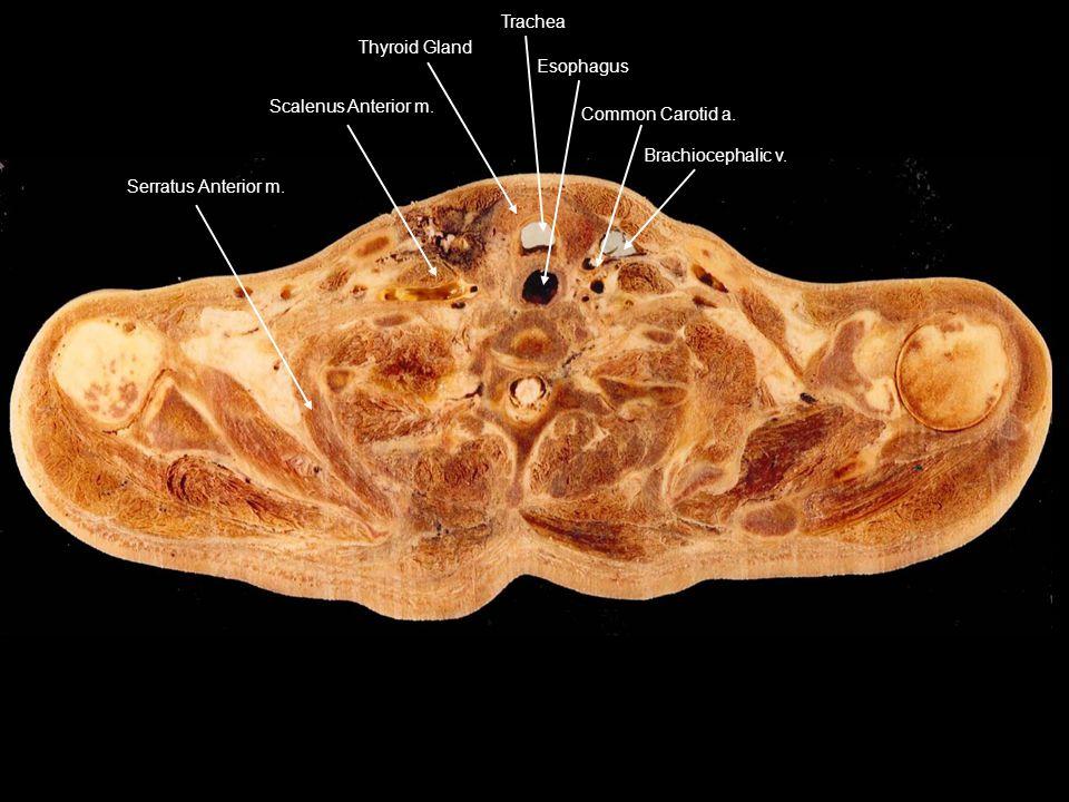 Serratus Anterior m. Scalenus Anterior m. Thyroid Gland Trachea Esophagus Common Carotid a. Brachiocephalic v.