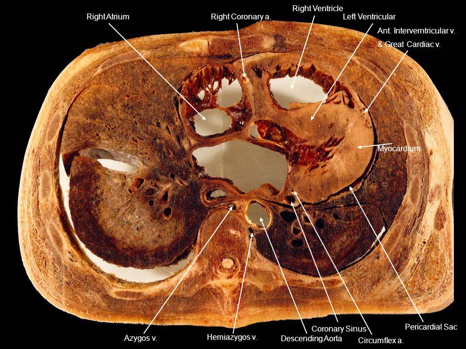 Right Atrium Right Coronary a. Right Ventricle Left Ventricular Ant. Interverntricular v. & Great Cardiac v. Pericardial Sac Myocardium Circumflex a.