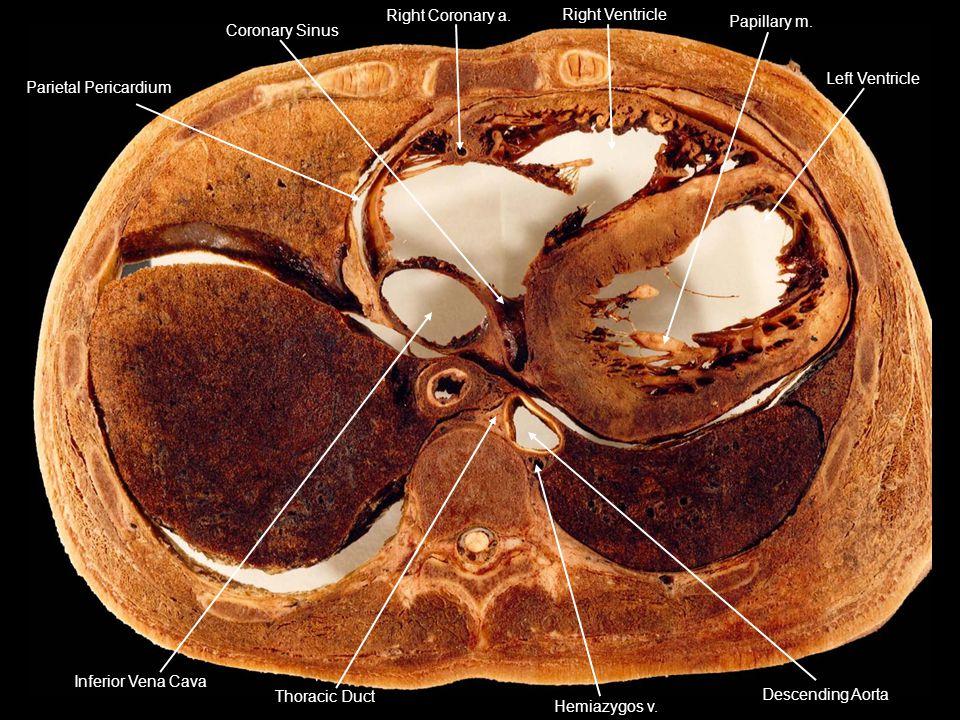 Parietal Pericardium Right Coronary a. Right Ventricle Left Ventricle Papillary m. Coronary Sinus Descending Aorta Hemiazygos v. Thoracic Duct Inferio