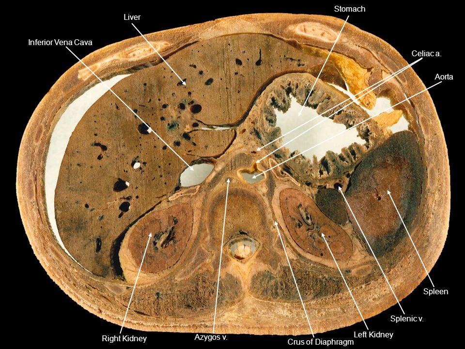 Inferior Vena Cava Liver Stomach Celiac a. Spleen Splenic v. Left Kidney Crus of Diaphragm Aorta Azygos v. Right Kidney