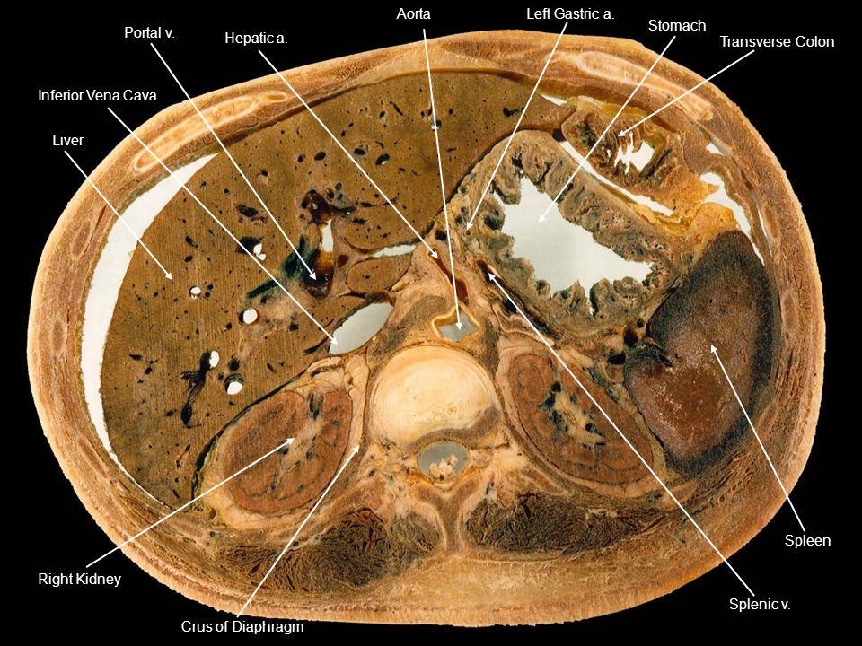 Liver Inferior Vena Cava Hepatic a. AortaLeft Gastric a. Stomach Transverse Colon Splenic v. Spleen Crus of Diaphragm Right Kidney Portal v.