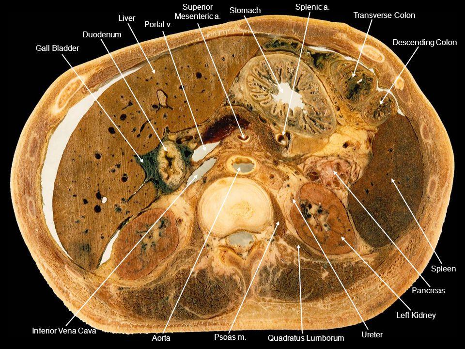 Duodenum Gall Bladder Liver Portal v. Stomach Transverse Colon Descending Colon Splenic a. Inferior Vena Cava Spleen Pancreas Left Kidney Ureter Quadr