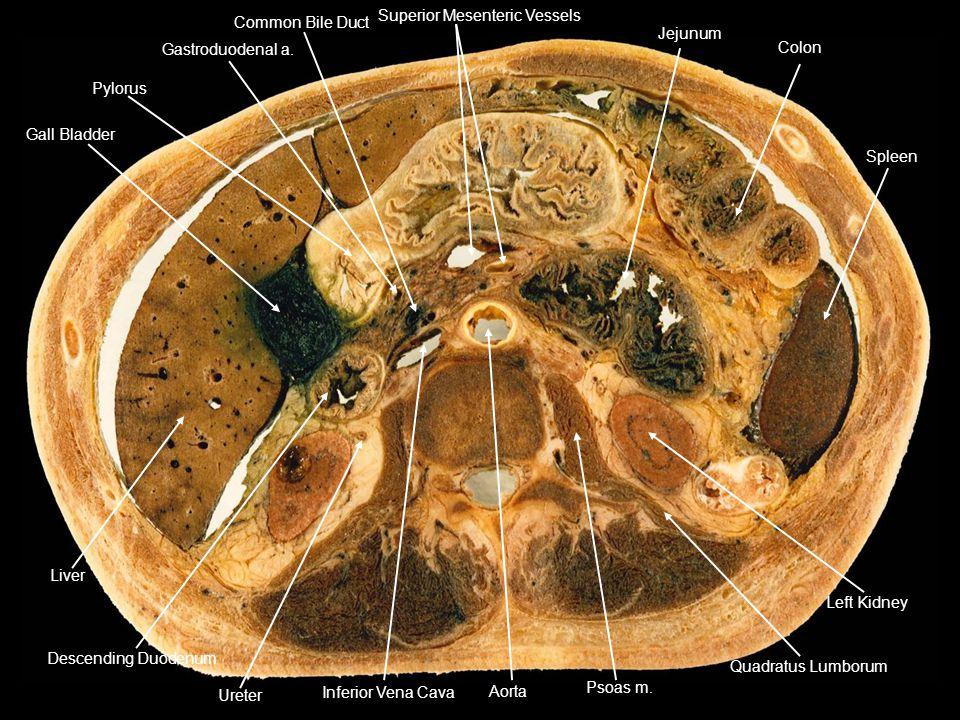 Gall Bladder Pylorus Gastroduodenal a. Common Bile Duct Superior Mesenteric Vessels Jejunum Colon Spleen Left Kidney Quadratus Lumborum Psoas m. Aorta