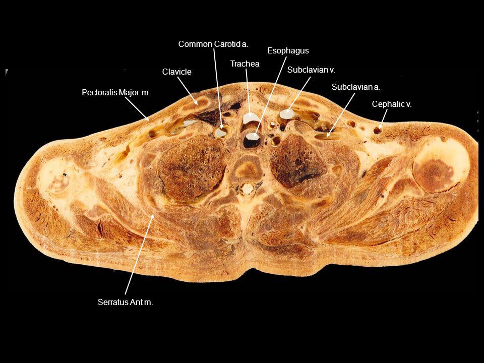 Pectoralis Major m. Clavicle Common Carotid a. Trachea Esophagus Subclavian v. Subclavian a. Cephalic v. Serratus Ant m.