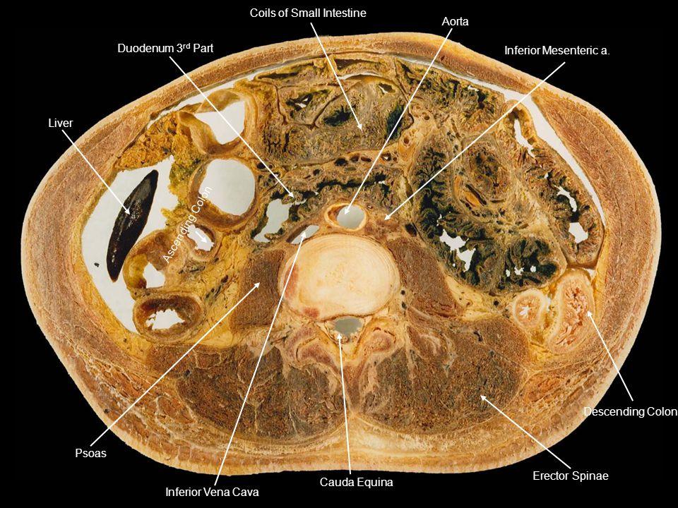 Duodenum 3 rd Part Coils of Small Intestine Inferior Mesenteric a. Descending Colon Erector Spinae Aorta Cauda Equina Inferior Vena Cava Psoas Ascendi