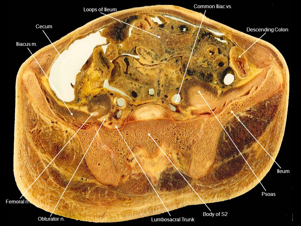 Cecum Iliacus m. Loops of Ileum Descending Colon Common Iliac vs. Ileum Psoas Body of S2 Lumbosacral Trunk Femoral n. Obturator n.