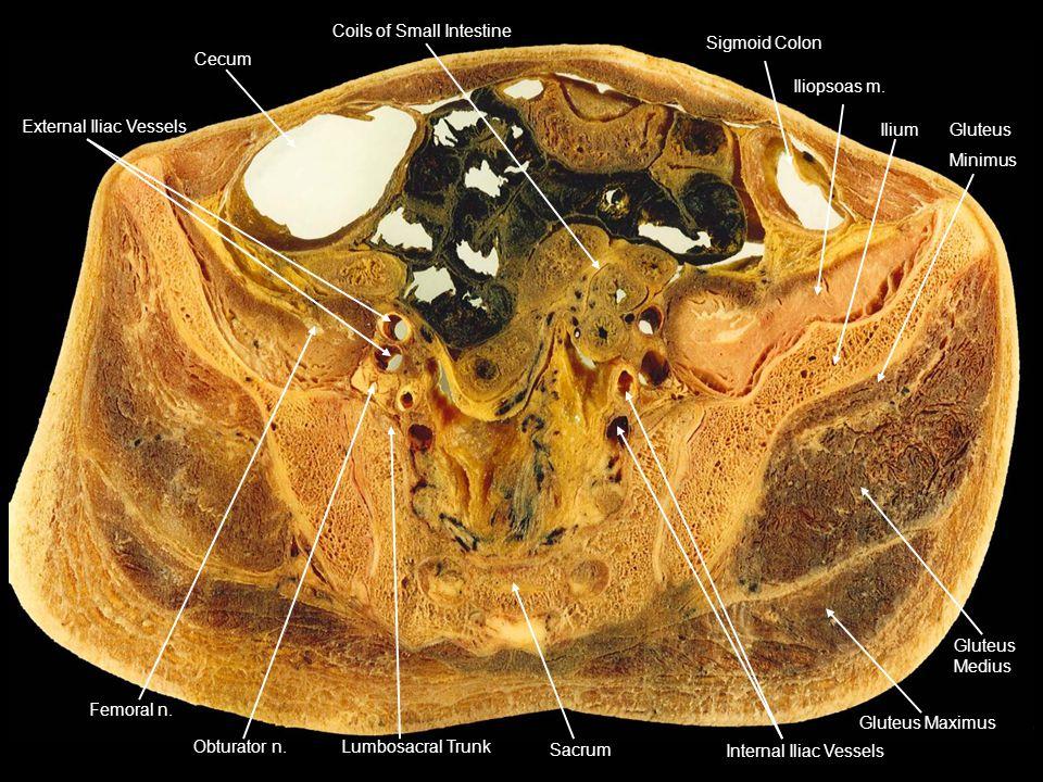 Cecum Coils of Small Intestine Sigmoid Colon Iliopsoas m. IliumGluteus Minimus Gluteus Medius Gluteus Maximus Internal Iliac Vessels Sacrum Lumbosacra