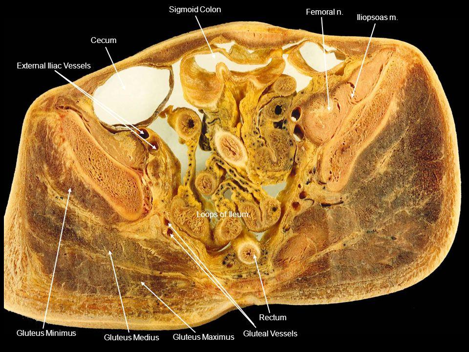 Cecum External Iliac Vessels Sigmoid Colon Femoral n. Iliopsoas m. Loops of Ileum Rectum Gluteal Vessels Gluteus Maximus Gluteus Medius Gluteus Minimu