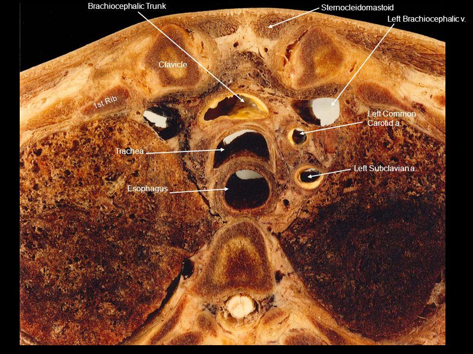 Brachiocephalic Trunk Sternocleidomastoid Left Brachiocephalic v. Left Common Carotid a. Left Subclavian a. Esophagus Trachea 1st Rib Clavicle