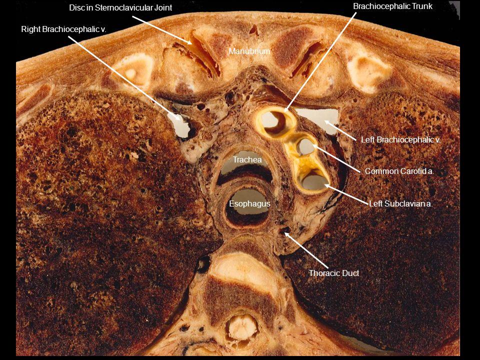 Thoracic Duct Left Subclavian a. Left Brachiocephalic v. Common Carotid a. Brachiocephalic Trunk Manubrium Disc in Sternoclavicular Joint Right Brachi