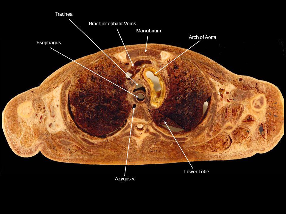 Lower Lobe Azygos v. Arch of Aorta Manubrium Brachiocephalic VeinsTrachea Esophagus