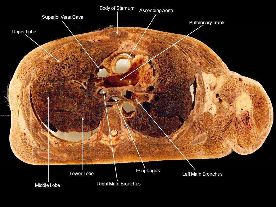Upper Lobe Superior Vena Cava Body of Sternum Ascending Aorta Pulmonary Trunk Left Main Bronchus Esophagus Right Main Bronchus Lower Lobe Middle Lobe